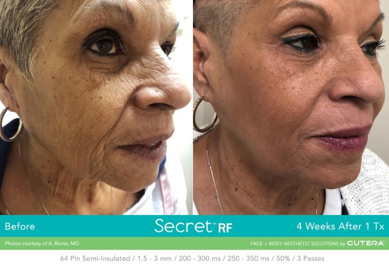 Secret RF 4 weeks after 1 Tx